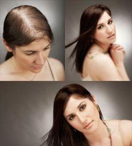 Herbal Hair Loss Remedies For External Use