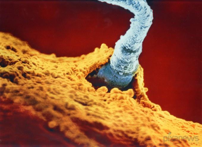 Best Fotografi Transformasi Sperma Hingga Janin