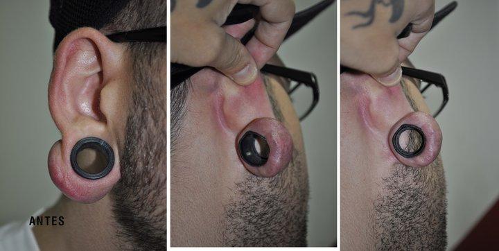 Dilataciones o expansiones infectadas artedecarry for Dilatacion 2mm