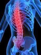 Nursing Management of Low Back Pain