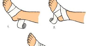 elastisk binda fotled