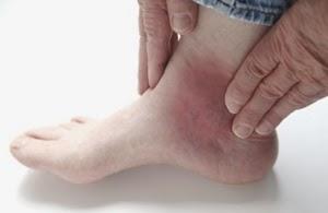 Cara Cepat Mengobati Artritis Gout