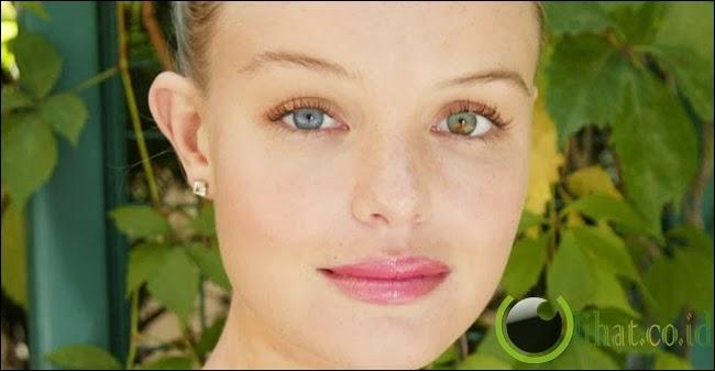 Kate Bosworth dan Mila Kunis Punya Mata Beda Warna
