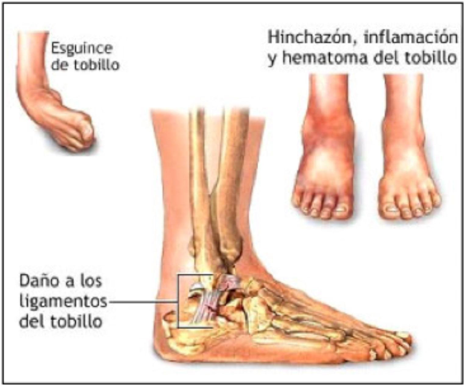 Moderno Anatomía Del Pie Y El Tobillo Imágenes Y Diagramas ...