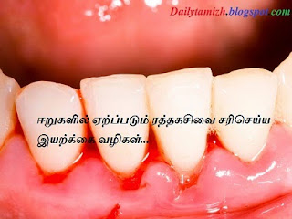 eeru ratha kasivu iyarkkai maruthuvam natural remedy for bleeding gum