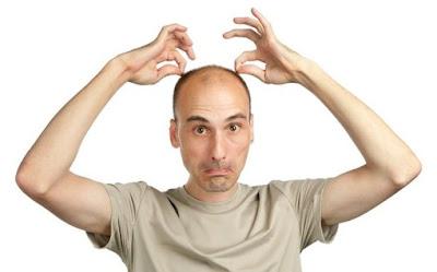 Best Haarausfall Behandlung - eine Menge von Optionen