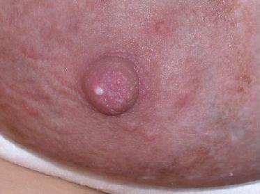 El sangrado de implantacin puede ser rojo brillante