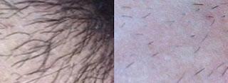 Vライン脱毛効果画像