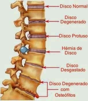 El dolor en el cuello da a la derecha en la oreja