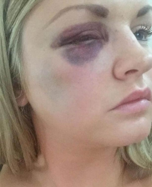 Violent Man Punches Two Bridesmaids...During His Own Wedding (Photos)