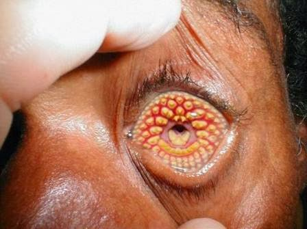 LAMPREY EYE DISEASE