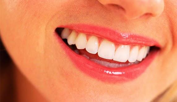 Macam-macam Penyakit pada Mulut