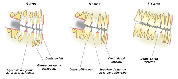 agénésie dentaire multiple, dent, bullelodie