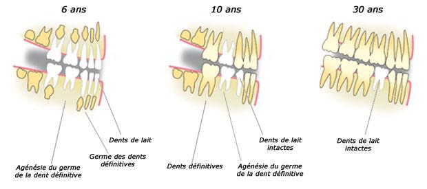 agénésie dentaire multiple, dent, bullelodie