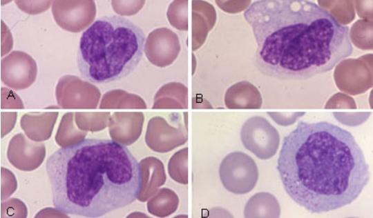 veterinary hematology dextervet monocyte normal