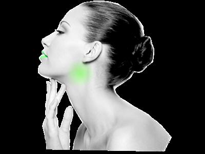 tonsil stones halitosis