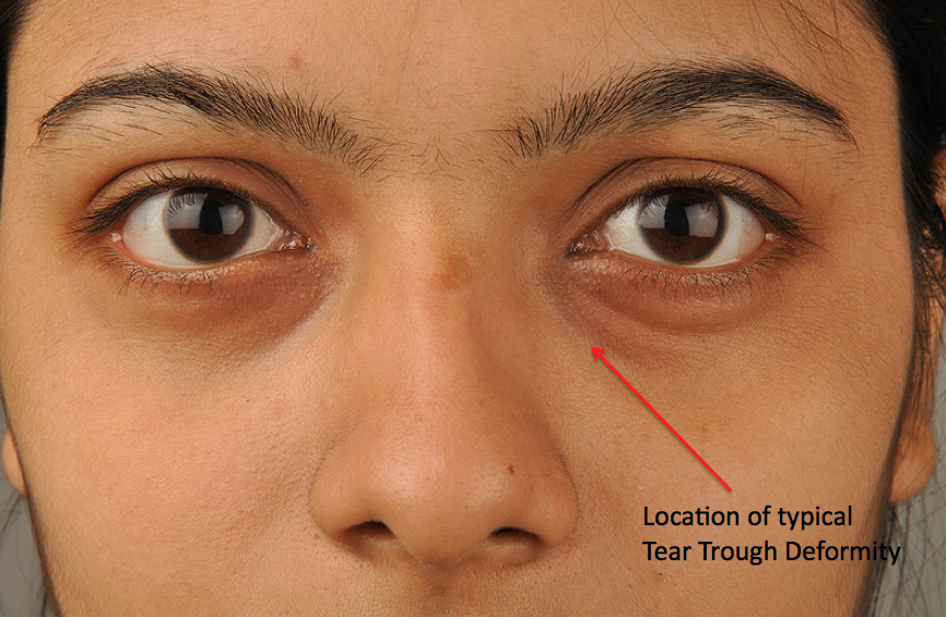 Image result for tear trough deformity