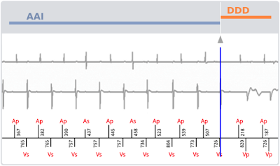 Sorin SafeR Pacemaker Minimise Ventricular Pacing