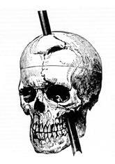 dibujo del cráneo de Phineas Gage