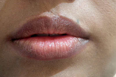 Natural (Pigmented) Lips