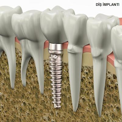 diş implantı sorunları, vidalı diş