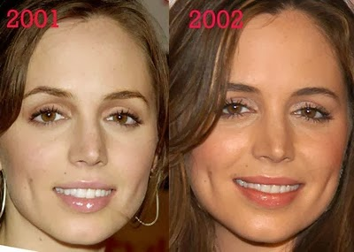 Eliza Dushku Plastic Surgery Nose Jobs Before And After border=