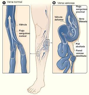 Insuficiencia venosa crónica y varices