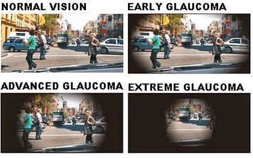 http://www.krishnaeyecentre.com/glaucoma.php