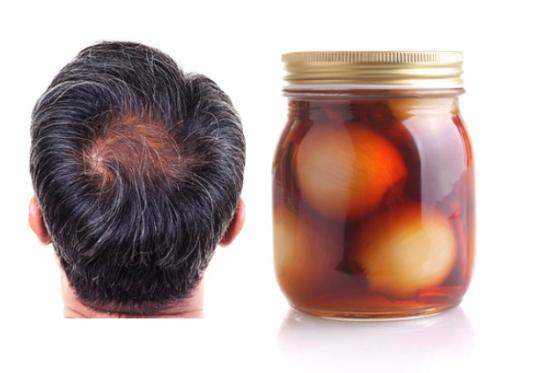 Traitement pour la pousse rapide des cheveux