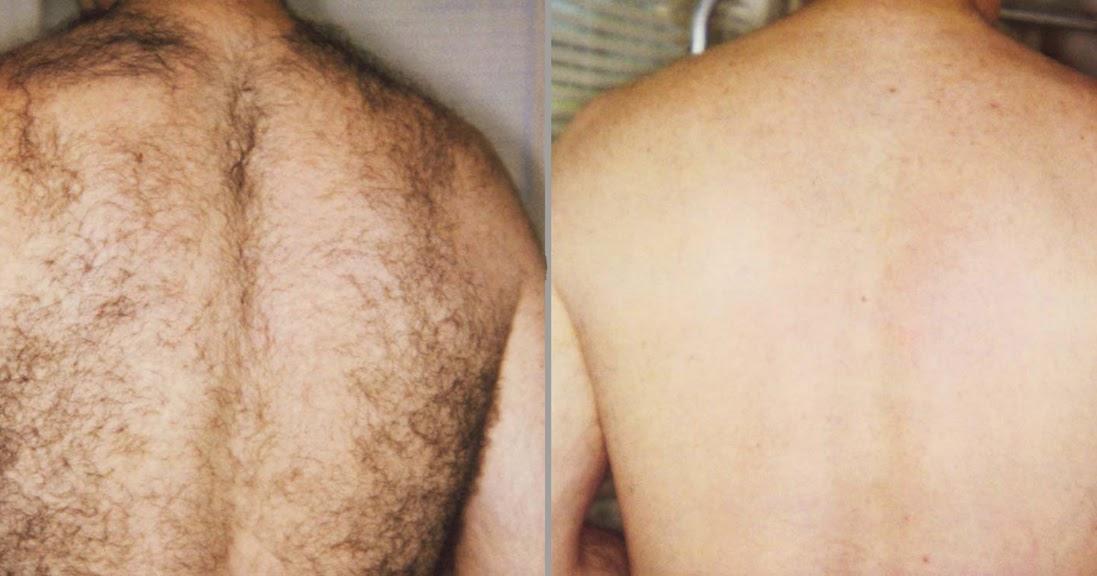 Commentaires Cheveux Traitement Au Laser D'pilation