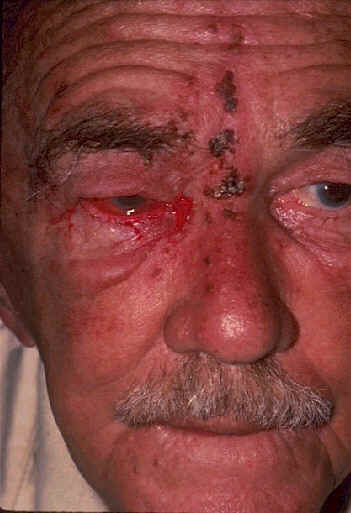 Herpes Zoster Treatment The answer to yesterdays challenge is Herpes Zoster, AKA: shingles 1