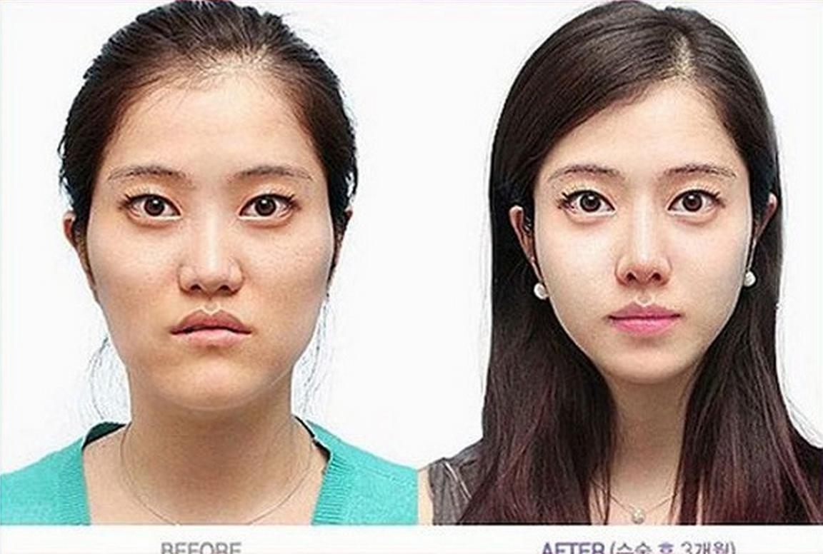Kandeej Com 20 Almost Unrecognizable Plastic Surgery