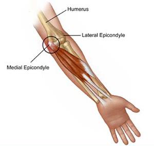 ont i muskelfästen arm