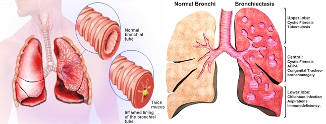 Pengobatan Herbal Bronkiektasis