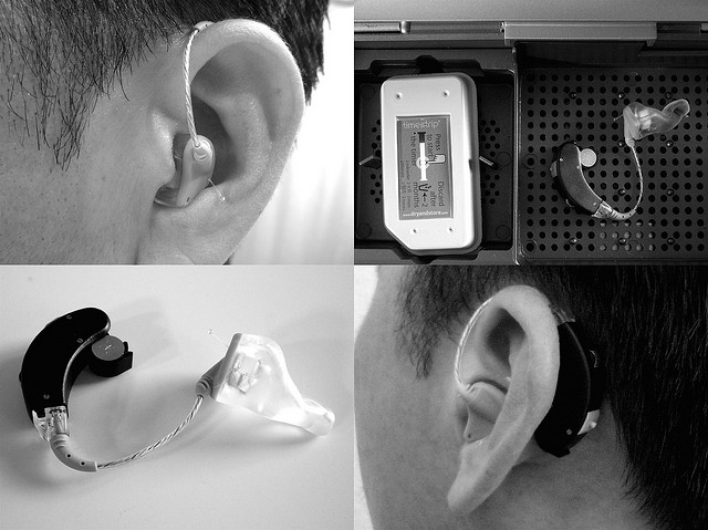 Evolution Of Hearing Devices