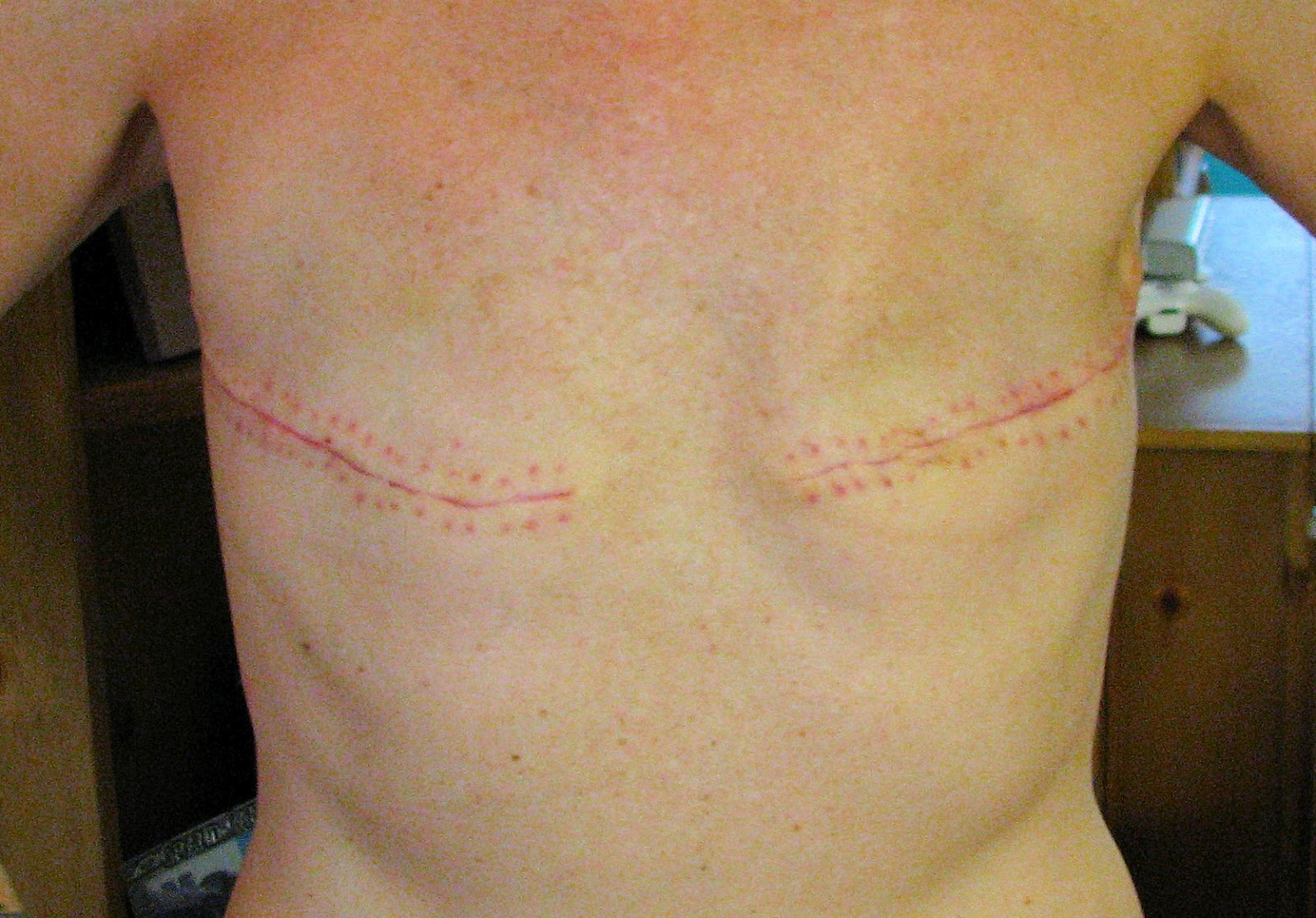 bilateral mastectomy without reconstruction photo - 21 days post-opAfter Mastectomy Photos