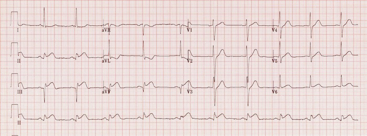 st elevation myocardial infarction pdf