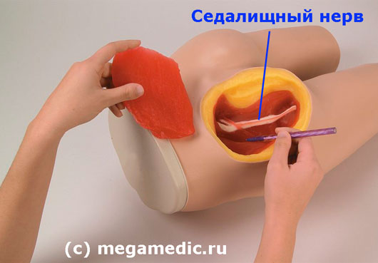 Как сделать укол внутримышечно себе Делаем укол себе в бедро правильно 58