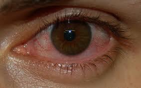 obat alami sakit mata