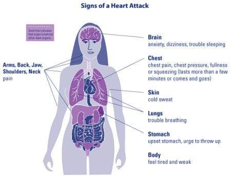 Human heart attack heart attack symptoms in women heart attack symptoms in women ccuart Image collections