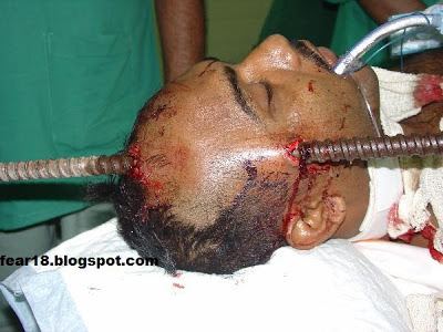 metal rod piercing his head