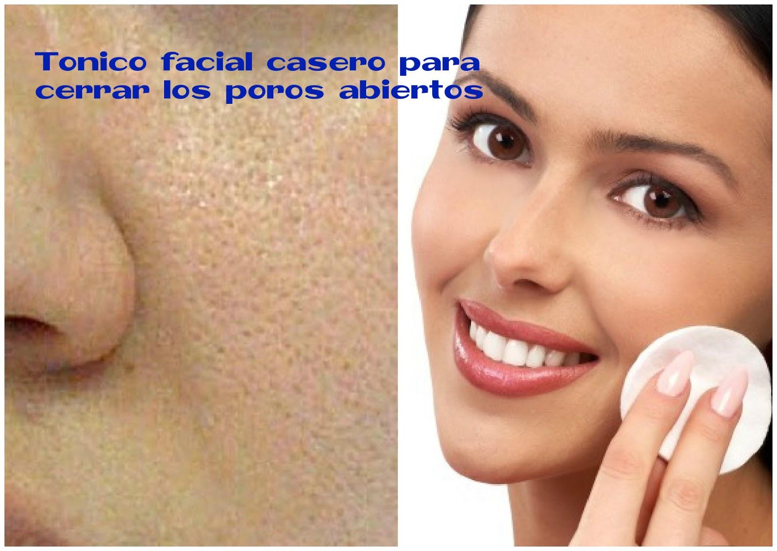 Cómo hacer tónico facial casero para cerrar poros abiertos