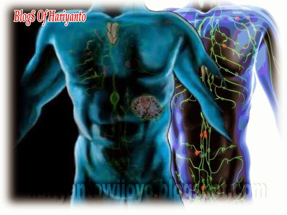 12 Gejala Penyakit Kanker Kelenjar Getah Bening
