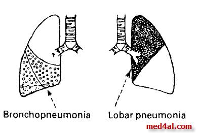 bronchopneumonia vs lobar pnumonia