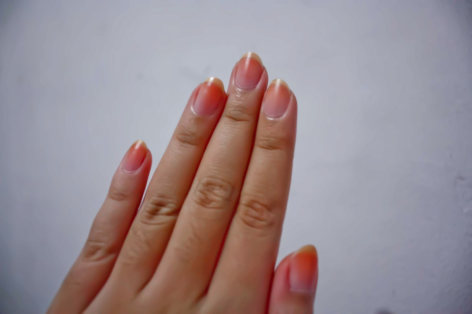 Unhealthy Nails Unhealthy nailsUnhealthy Toenails