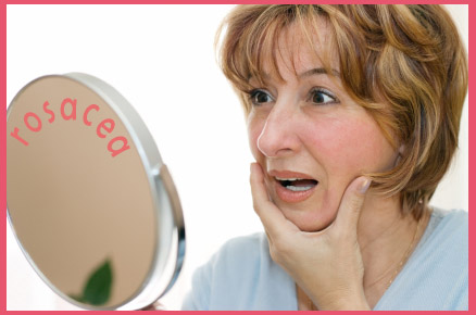 Rosacea, facial redness and inflammation