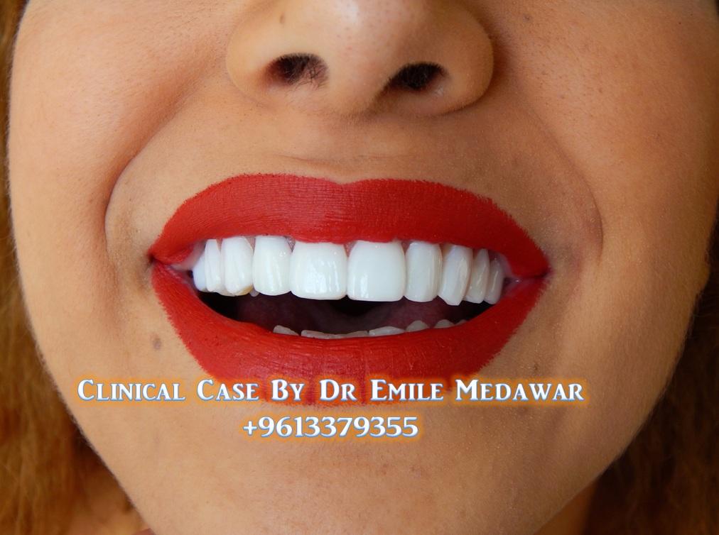 blanchiment facettes dentaires