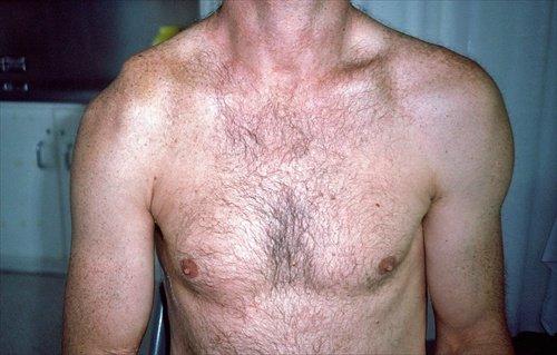 artrose braço