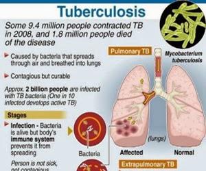 Kenali Ciri-ciri Penyakit TBC Sejak Dini