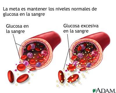 Deterioro tolerancia glucosa
